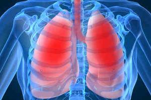 Χρόνια αναπνευστική πνευμονοπάθεια