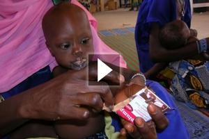 «Ο υποσιτισμός που δεν έπρεπε να υπάρχει»