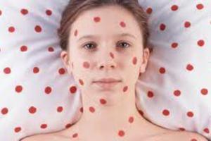 Καμπανάκι για αύξηση κρουσμάτων ιλαράς