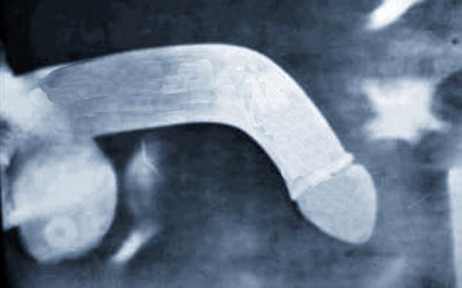 Αποτέλεσμα εικόνας για καταγμα πέους