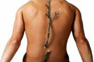 Η οστεοπόρωση δεν είναι μόνο γυναικεία υπόθεση