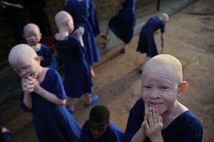 Φόβοι για εκατοντάδες δολοφονίες αλμπίνων στην Τανζανία