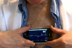 Δωρεάν καρδιογράφημα το Σαββατοκύριακο στη Λυκόβρυση