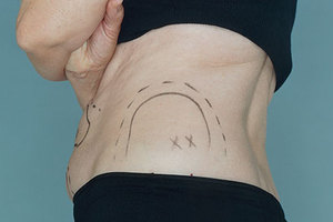 Άσκοπες επεμβάσεις από τους πλαστικούς χειρουργούς