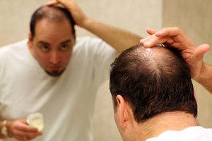 Μια… τολμηρή θεραπεία για τη φαλάκρα