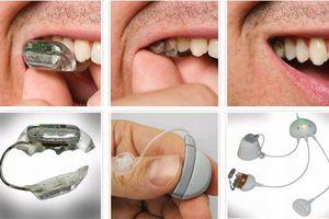 Κωφοί ακούνε με τα... δόντια