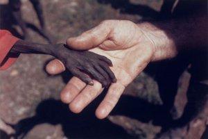 Περίπου 700.000 παιδιά υποφέρουν από υποσιτισμό στο Κονγκό