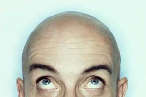 Η φαλάκρα προδίδει τον καρκίνο του προστάτη