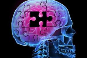 Το στρες μας προστατεύει από τη νόσο Αλτσχάιμερ