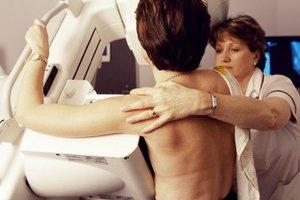 Δωρεάν εξέταση για τον καρκίνο του μαστού