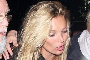 Το πρόβλημα υγείας που σόκαρε την Kate Moss