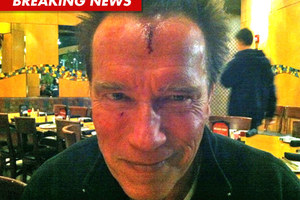 Με σοβαρό τραύμα στο πρόσωπο ο Άρνολντ Σβαρτσενέγκερ