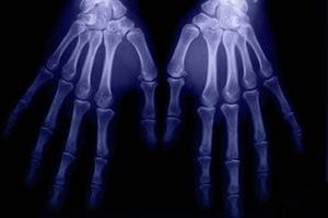 Εκτυπωτής «τυπώνει» υλικό οστών!