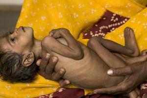 «Εθνική ντροπή το πρόβλημα του υποσιτισμού»