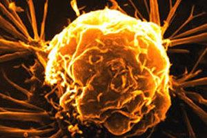 Η χρήση της θερμότητας «όπλο» κατά του καρκίνου