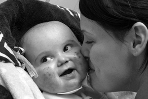 Δίχρονος πέθανε στην αγκαλιά της μαμάς του