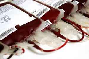 Μολυσμένο αίμα με ηπατίτιδα Β χορηγήθηκε σε ασθενή