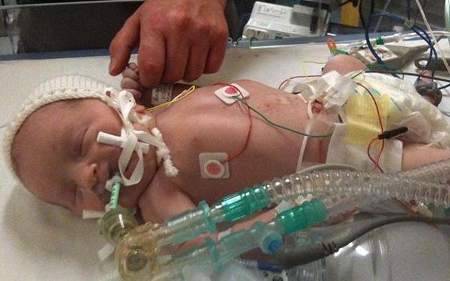 Μωρό γεννήθηκε νεκρό και στεγνό από αίμα
