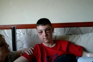 Ρατσιστική επίθεση σε 17χρονο στην Αγγλία
