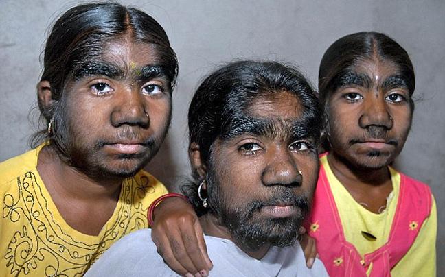 kopelestrixes1 Τα κορίτσια λυκάνθρωποι   Φωτογραφίες από τα συμπτώματα του σπάνιου συνδρόμου από το οποίο πάσχουν