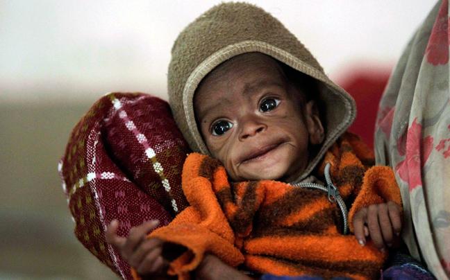 INDIA MALNUTRITION1 ΣΥΓΚΛΟΝΙΣΤΙΚΕΣ ΦΩΤΟΓΡΑΦΙΕΣ: Παιδιά ενός κατώτερου θεού...