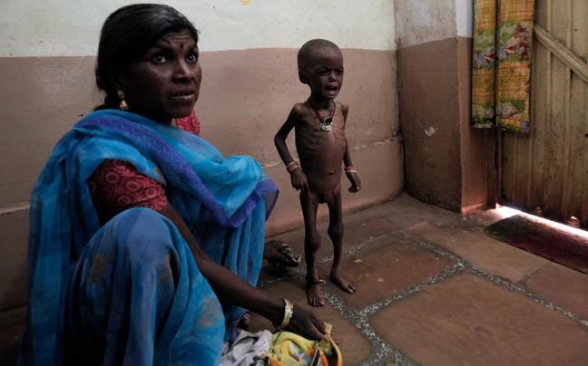 INDIA MALNUTRITION3 ΣΥΓΚΛΟΝΙΣΤΙΚΕΣ ΦΩΤΟΓΡΑΦΙΕΣ: Παιδιά ενός κατώτερου θεού...