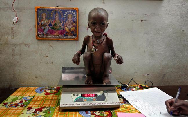 INDIA MALNUTRITION4 ΣΥΓΚΛΟΝΙΣΤΙΚΕΣ ΦΩΤΟΓΡΑΦΙΕΣ: Παιδιά ενός κατώτερου θεού...