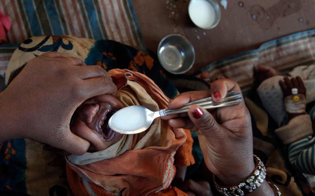 INDIA MALNUTRITION5 ΣΥΓΚΛΟΝΙΣΤΙΚΕΣ ΦΩΤΟΓΡΑΦΙΕΣ: Παιδιά ενός κατώτερου θεού...