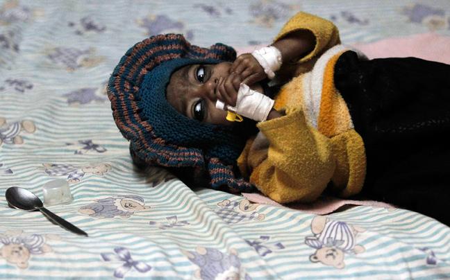 INDIA MALNUTRITION6 ΣΥΓΚΛΟΝΙΣΤΙΚΕΣ ΦΩΤΟΓΡΑΦΙΕΣ: Παιδιά ενός κατώτερου θεού...