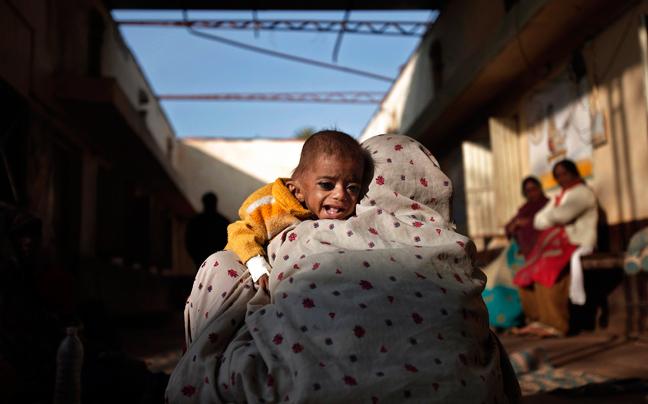 INDIA MALNUTRITION7 ΣΥΓΚΛΟΝΙΣΤΙΚΕΣ ΦΩΤΟΓΡΑΦΙΕΣ: Παιδιά ενός κατώτερου θεού...