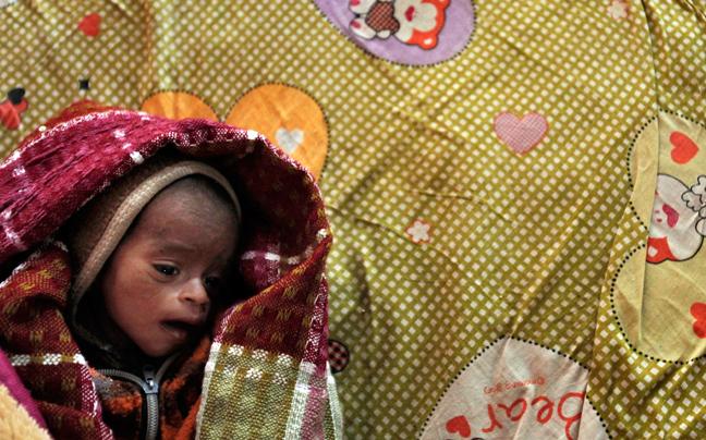 INDIA MALNUTRITION8 ΣΥΓΚΛΟΝΙΣΤΙΚΕΣ ΦΩΤΟΓΡΑΦΙΕΣ: Παιδιά ενός κατώτερου θεού...