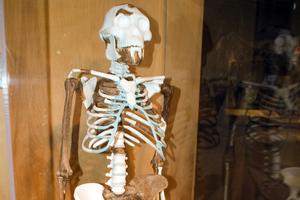 Δημιουργήθηκε σε εργαστήριο ανθρώπινος σκελετικός μυς