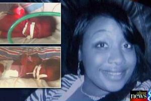 Εγκεφαλικά νεκρή γυναίκα φέρνει στον κόσμο δίδυμα