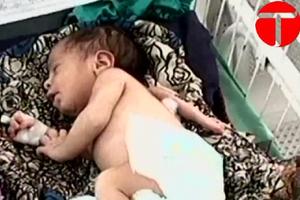 Μωρό γεννήθηκε με τρία χέρια