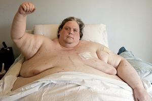 Αγωνιώδης μάχη να χάσει βάρος για να ζήσει