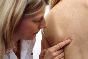Δωρεάν εξετάσεις για πρόληψη του κακοήθους μελανώματος