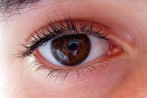 0c3cd2ffddac Πώς θα καλύψετε τα κόκκινα μάτια – Newsbeast