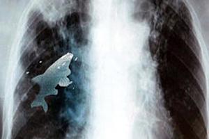 Οι γιατροί αφαίρεσαν ζωντανό ψάρι από τον πνεύμονά του
