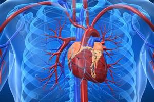 Η πολλή άσκηση κάνει κακό στην καρδιά