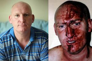 Τσακώθηκε με τη σύντροφό του και τον «περιέλαβαν» δεκαεννέα αστυνομικοί!