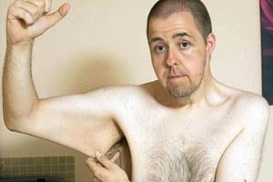 Έχασε 101 κιλά σε 18 μήνες για να βρει γυναίκα
