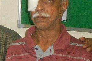Σκουλήκι 13 εκατοστών είχε εγκατασταθεί στο μάτι ηλικιωμένου!