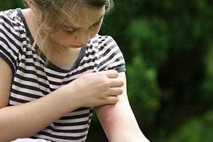Γιατί τα κουνούπια τσιμπάνε κάποιους ανθρώπους περισσότερο