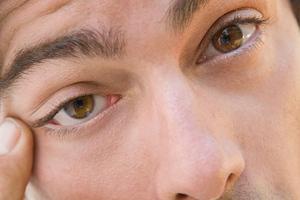 3ea75cdf70b1 Κόκκινα μάτια – Newsbeast