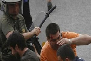Σε διαθεσιμότητα αστυνομικός για επίθεση σε διαδηλωτή