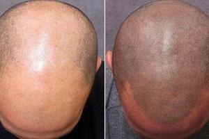 Τατουάζ κατά της φαλάκρας