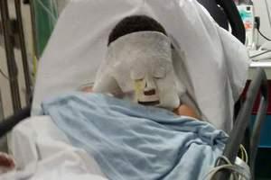 Βεγγαλικό «έσκασε» στο πρόσωπο δεκάχρονου