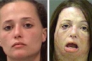 Το πρόσωπο της φρίκης των ναρκωτικών