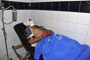 Ασφυκτιούν τα νοσοκομεία της Συρίας