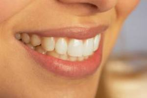 Φράουλες, μαύρη σοκολάτα και τυρί για λευκά δόντια